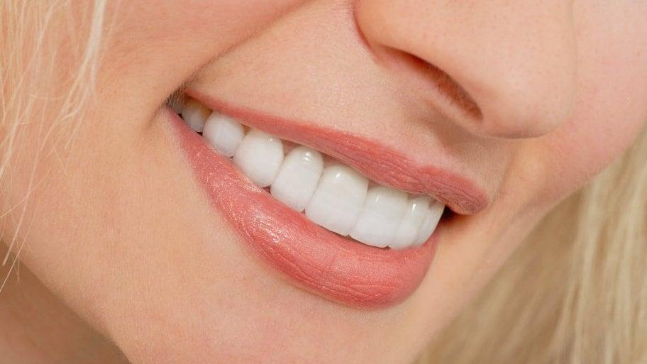 A Total Review Concerning Dental Veneers