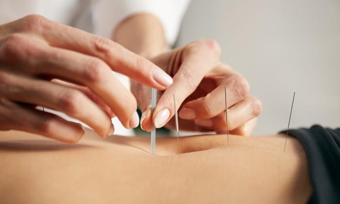 best acupuncture in minneapolis