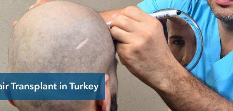 5 Myths About Hair Restoration